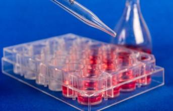 KSÜ Tıp'ta Yağ Kaynaklı Kök Hücre İle Tedavi Yapılmaya Başlandı