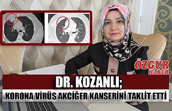 Dr. Kozanlı; korona virüs akciğer kanserini taklit etti