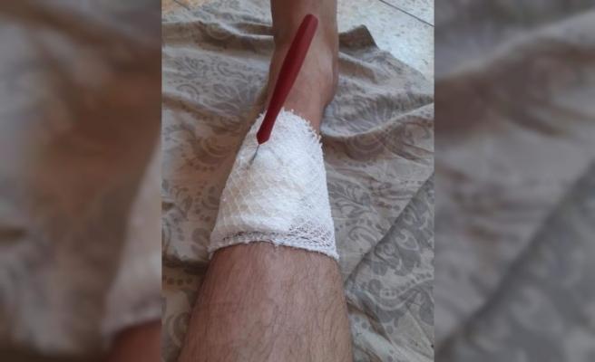 Koli Bantlarken Bıçağı Baldırına Sapladı
