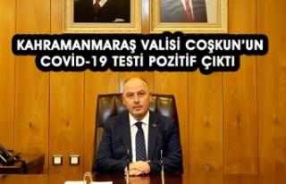 Vali Coşkun'un , Covid-19 Testi Pozitif Çıktı