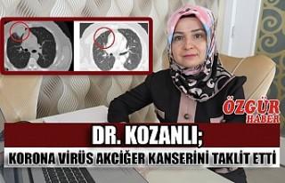 Dr. Kozanlı; korona virüs akciğer kanserini taklit...