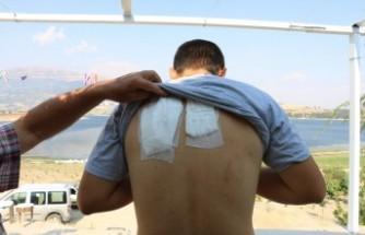 Yoldan Geçme Parası İstedikleri Engelli Genci Sopayla Dövdüler