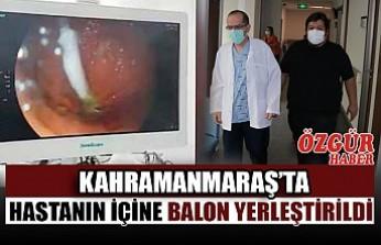 Kahramanmaraş'ta Hastanın İçine Balon Yerleştirildi